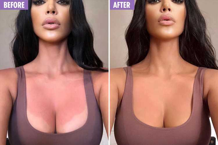 Kim Kardashian reveals painful-looking sunburn on her boobs after getting caught out by the heatwave