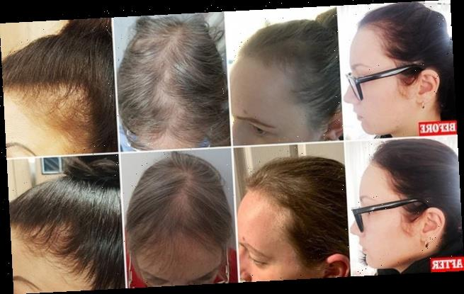 Women suffering from balding hair hail £35-a-month protein capsules