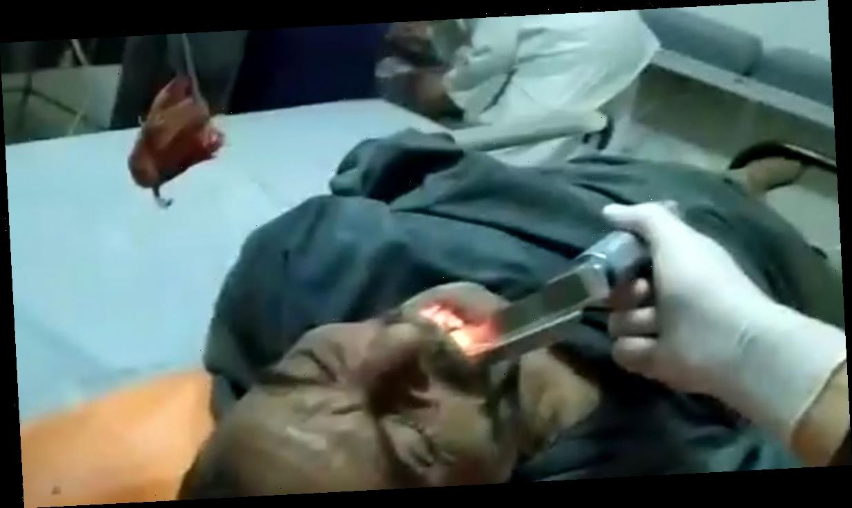 Egyptian Man Gets Live Fish Extracted from His Throat