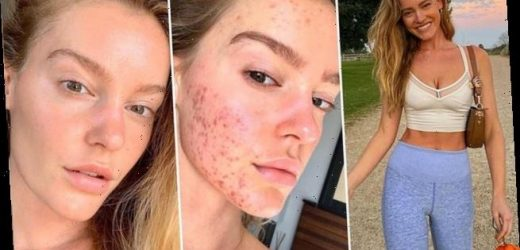 Woman shows off incredible skin transformation after two-year battle