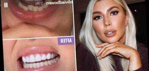 Olivia Bowen shows off perfect smile after straightening 'crooked' teeth with home kit in lockdown