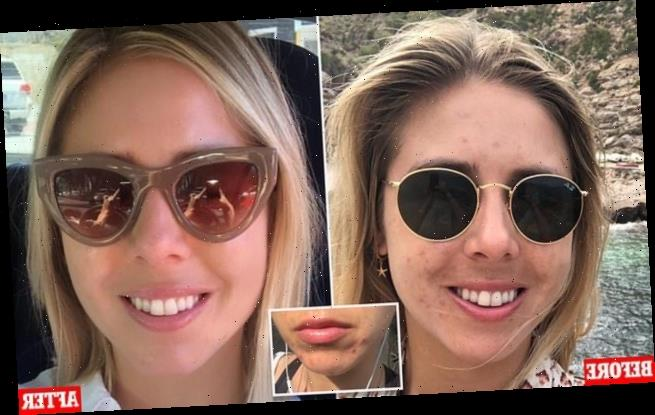 Woman, 30, with acne claims a shower filter has cleared up her skin
